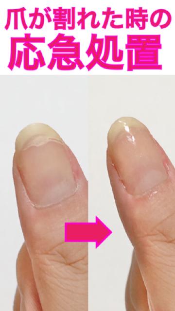 処置 割れ 爪 が た